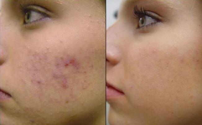 Remove skin spots